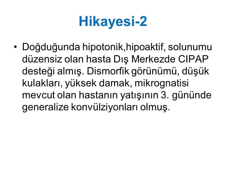 Hikayesi-2