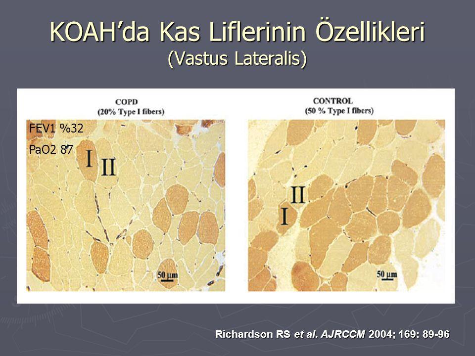 KOAH'da Kas Liflerinin Özellikleri (Vastus Lateralis)