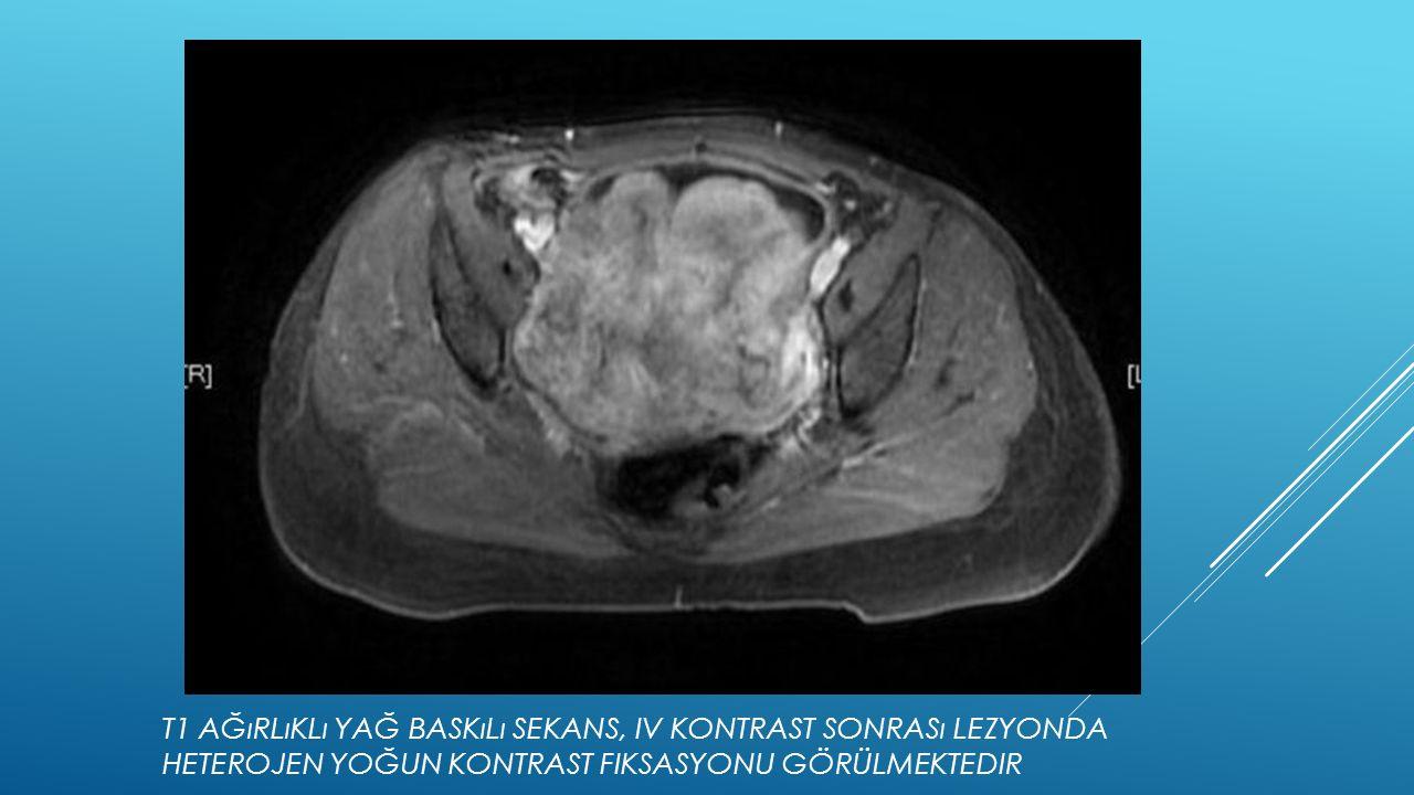 T1 Ağırlıklı yağ baskılı sekans, IV kontrast sonrası lezyonda heterojen yoğun kontrast fiksasyonu görülmektedir