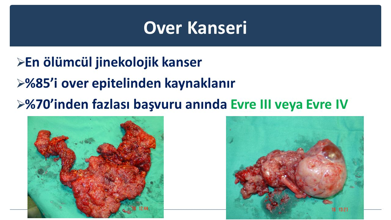 Over Kanseri En ölümcül jinekolojik kanser