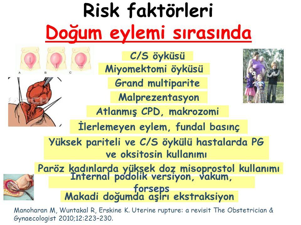 Risk faktörleri Doğum eylemi sırasında