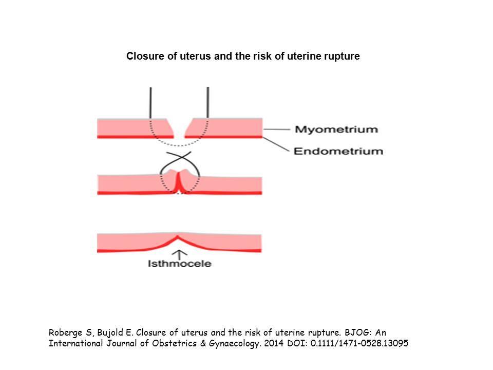 Closure of uterus and the risk of uterine rupture