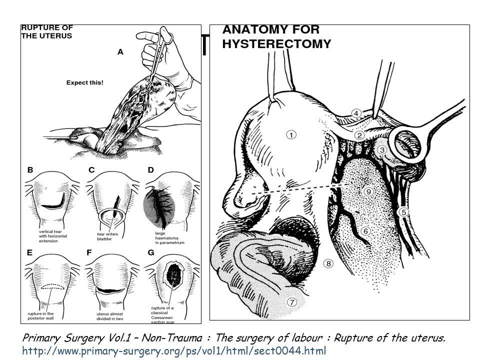 Tedavi Primary Surgery Vol.1 – Non-Trauma : The surgery of labour : Rupture of the uterus.