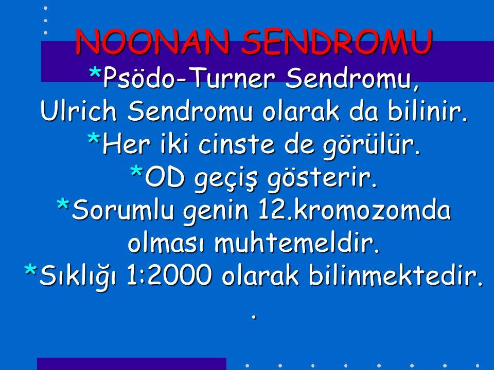 NOONAN SENDROMU *Psödo-Turner Sendromu, Ulrich Sendromu olarak da bilinir.