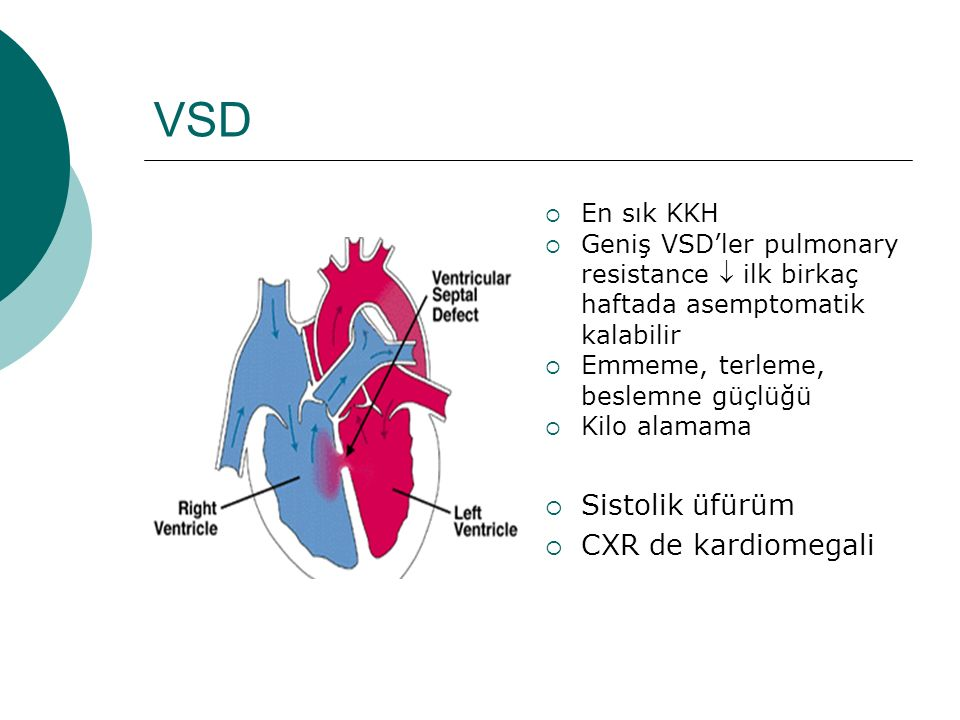 VSD Sistolik üfürüm CXR de kardiomegali En sık KKH