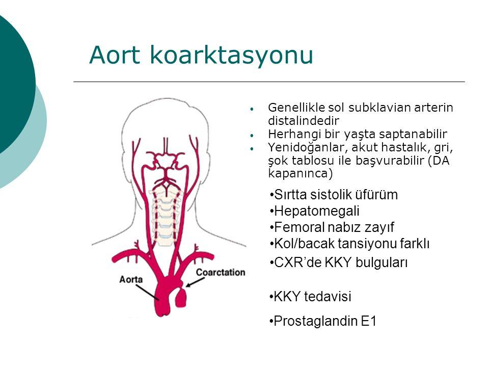 Aort koarktasyonu Sırtta sistolik üfürüm Hepatomegali