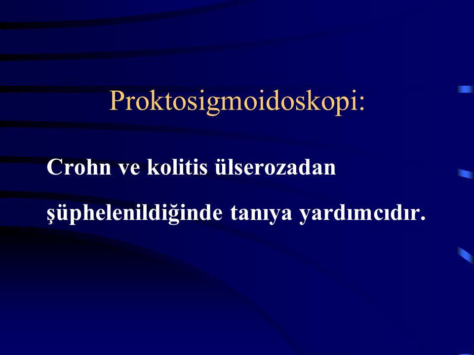 Proktosigmoidoskopi: