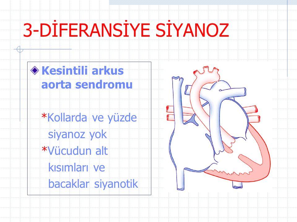 3-DİFERANSİYE SİYANOZ Kesintili arkus aorta sendromu