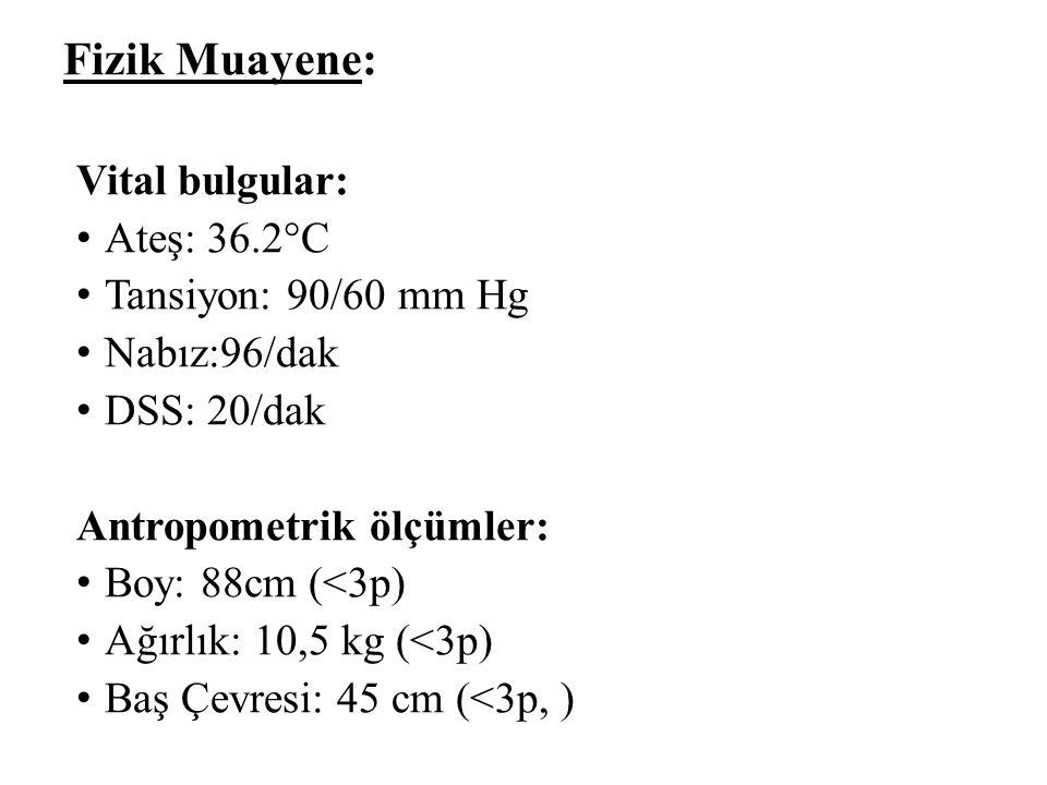 Fizik Muayene: Vital bulgular: Ateş: 36.2°C Tansiyon: 90/60 mm Hg