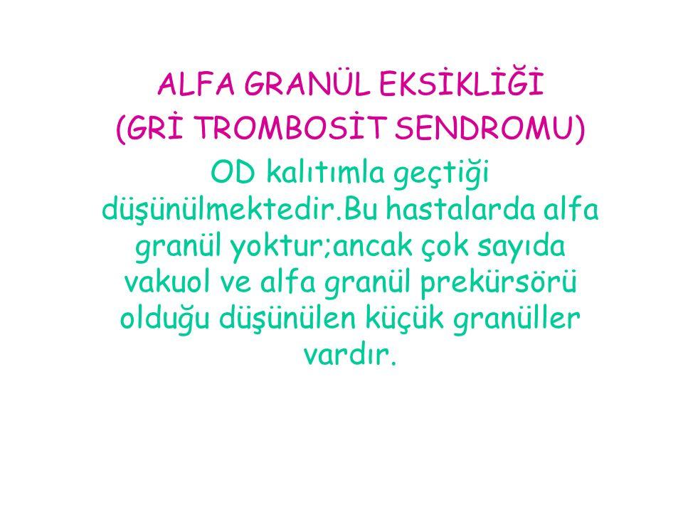 (GRİ TROMBOSİT SENDROMU)