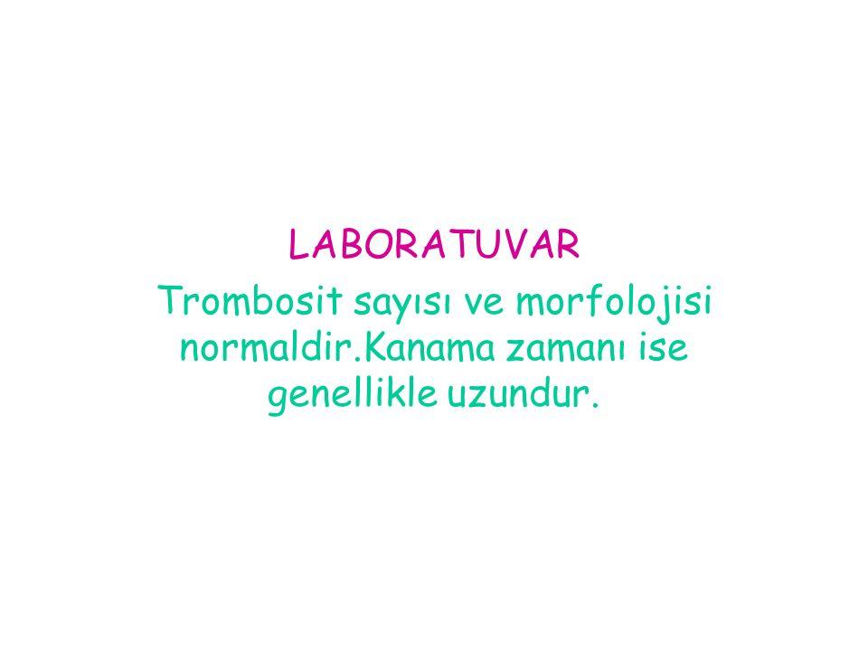 LABORATUVAR Trombosit sayısı ve morfolojisi normaldir.Kanama zamanı ise genellikle uzundur.