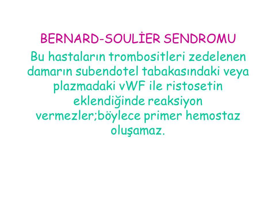 BERNARD-SOULİER SENDROMU