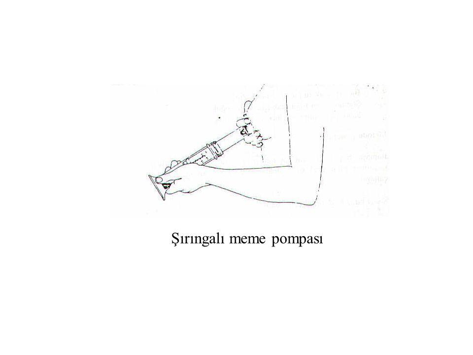 Şırıngalı meme pompası