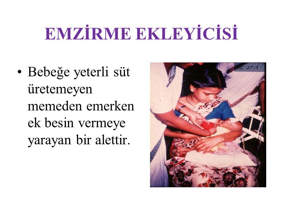 EMZİRME EKLEYİCİSİ Bebeğe yeterli süt üretemeyen memeden emerken ek besin vermeye yarayan bir alettir.