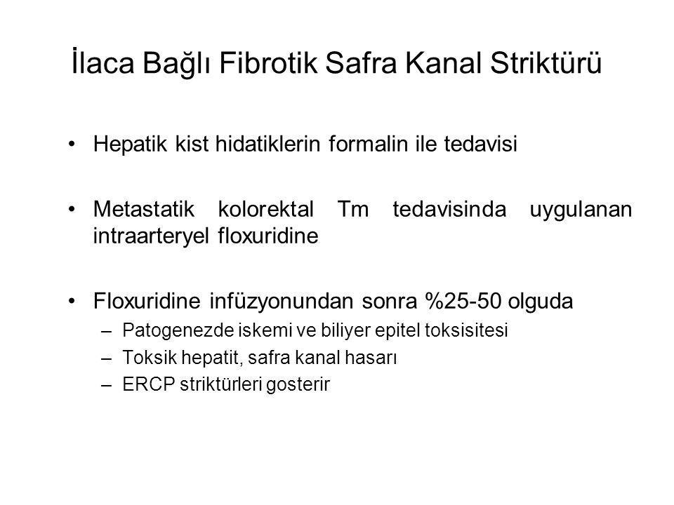 İlaca Bağlı Fibrotik Safra Kanal Striktürü