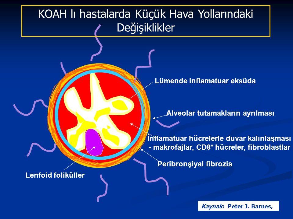 KOAH lı hastalarda Küçük Hava Yollarındaki Değişiklikler