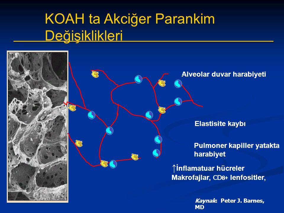 Alveolar duvar harabiyeti