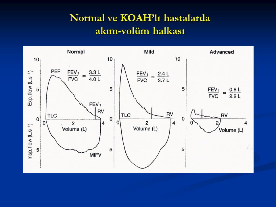 Normal ve KOAH'lı hastalarda akım-volüm halkası