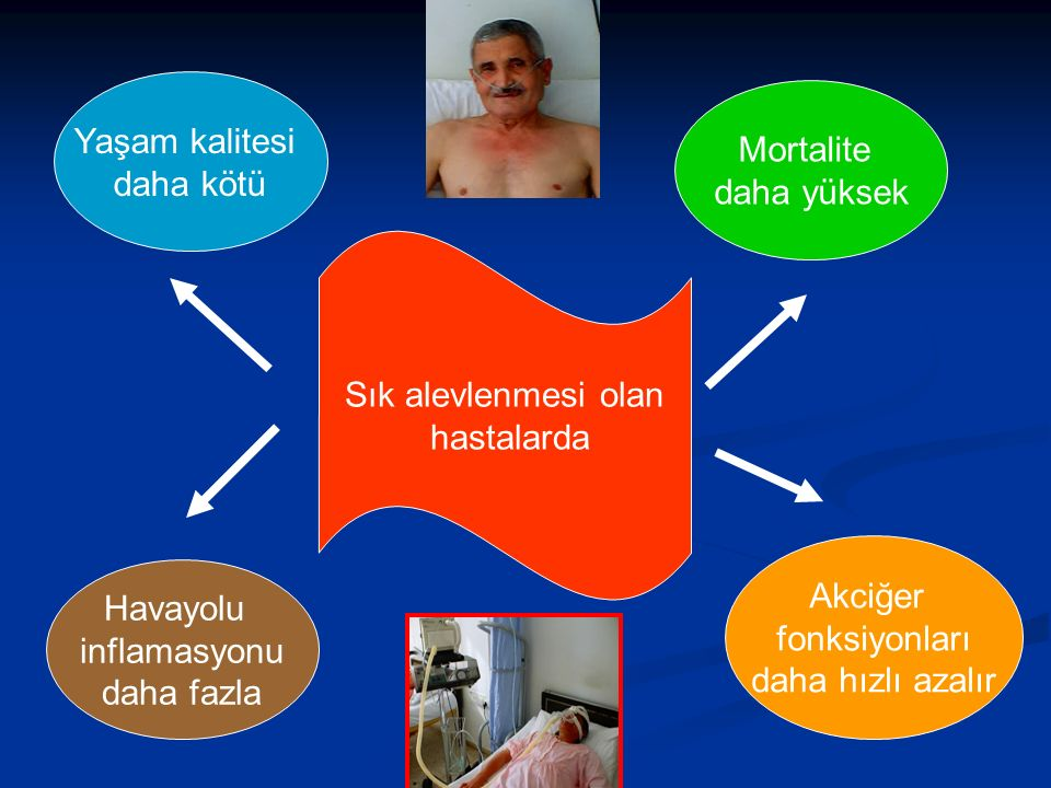 Yaşam kalitesi daha kötü. Mortalite. daha yüksek. Sık alevlenmesi olan. hastalarda. Akciğer. fonksiyonları.