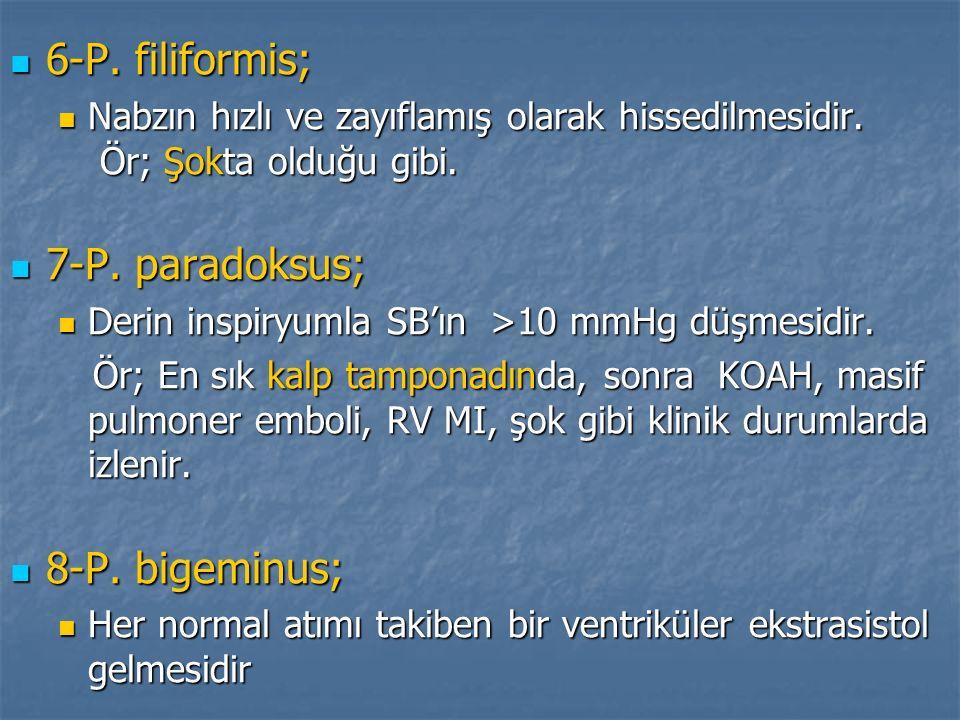 6-P. filiformis; 7-P. paradoksus; 8-P. bigeminus;