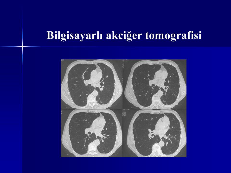 Bilgisayarlı akciğer tomografisi