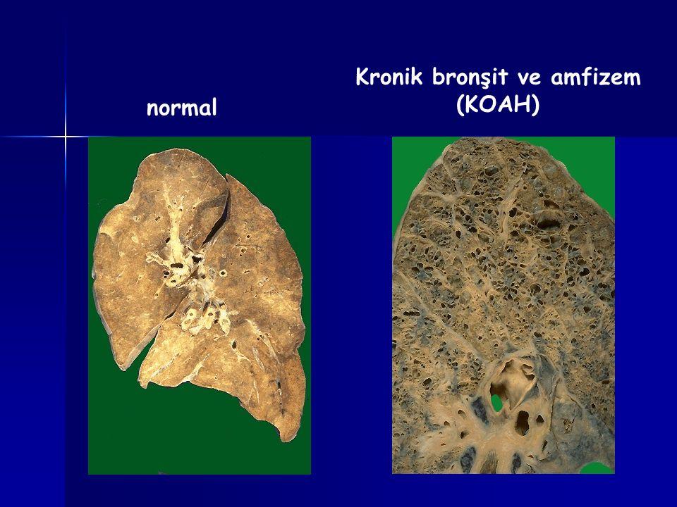 Kronik bronşit ve amfizem