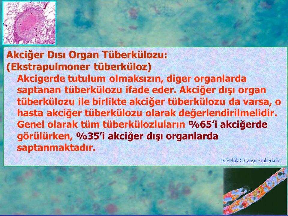 Akciğer Dısı Organ Tüberkülozu: (Ekstrapulmoner tüberküloz)