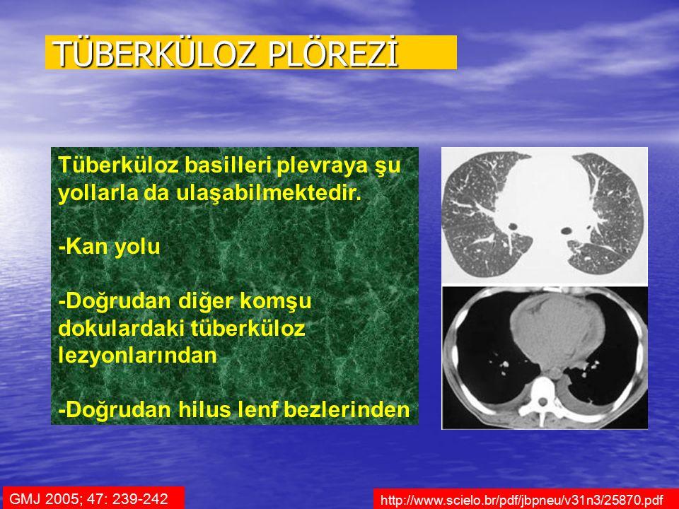 TÜBERKÜLOZ PLÖREZİ Tüberküloz basilleri plevraya şu yollarla da ulaşabilmektedir. -Kan yolu.