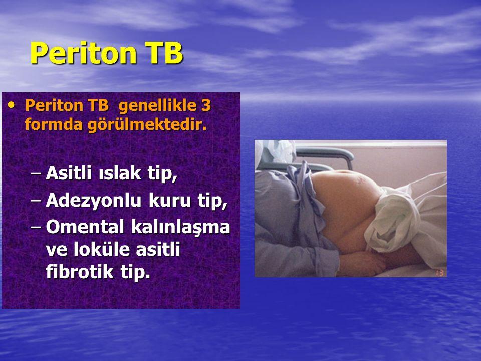 Periton TB Asitli ıslak tip, Adezyonlu kuru tip,
