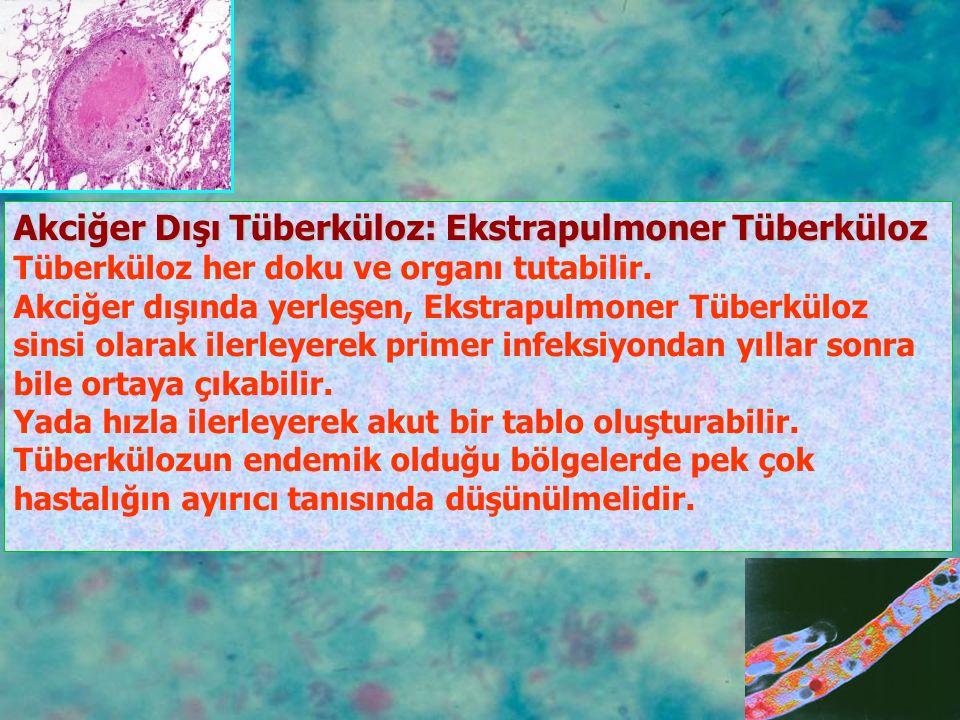 Akciğer Dışı Tüberküloz: Ekstrapulmoner Tüberküloz