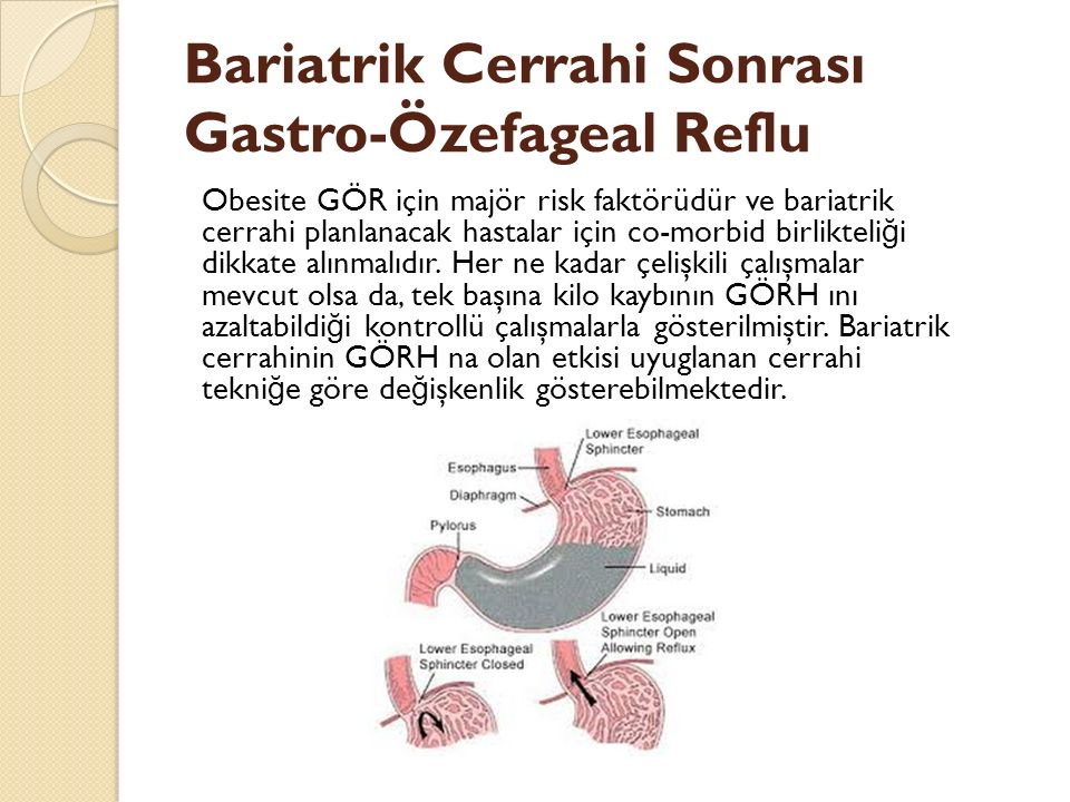 Bariatrik Cerrahi Sonrası Gastro-Özefageal Reflu