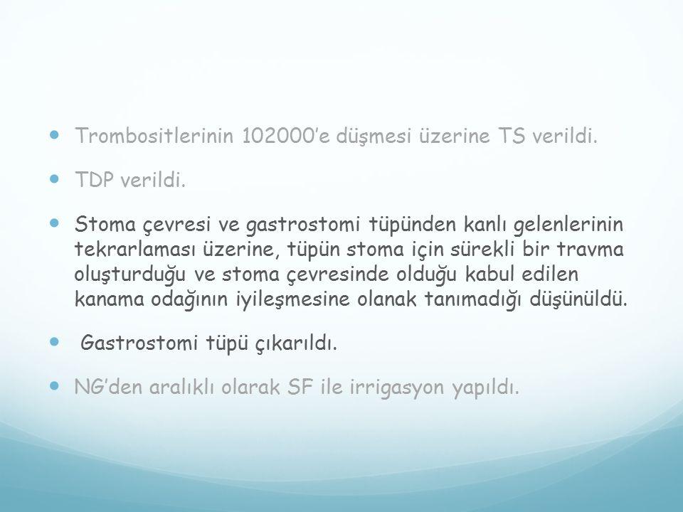 Trombositlerinin 102000'e düşmesi üzerine TS verildi.