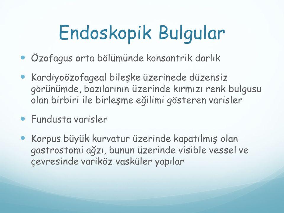 Endoskopik Bulgular Özofagus orta bölümünde konsantrik darlık