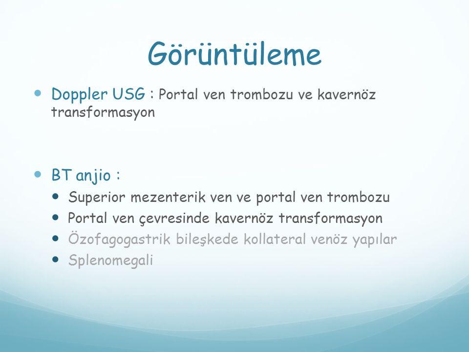 Görüntüleme Doppler USG : Portal ven trombozu ve kavernöz transformasyon. BT anjio : Superior mezenterik ven ve portal ven trombozu.