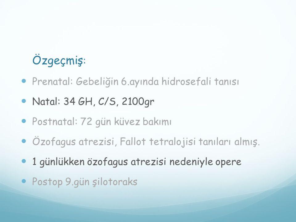 Özgeçmiş: Prenatal: Gebeliğin 6.ayında hidrosefali tanısı. Natal: 34 GH, C/S, 2100gr. Postnatal: 72 gün küvez bakımı.