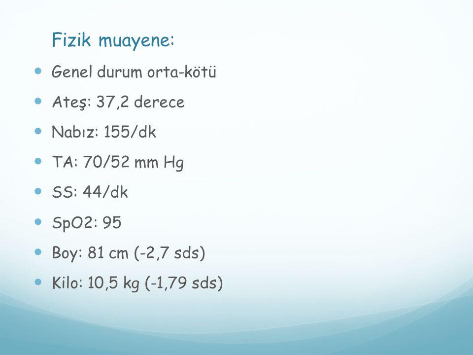 Fizik muayene: Genel durum orta-kötü Ateş: 37,2 derece Nabız: 155/dk