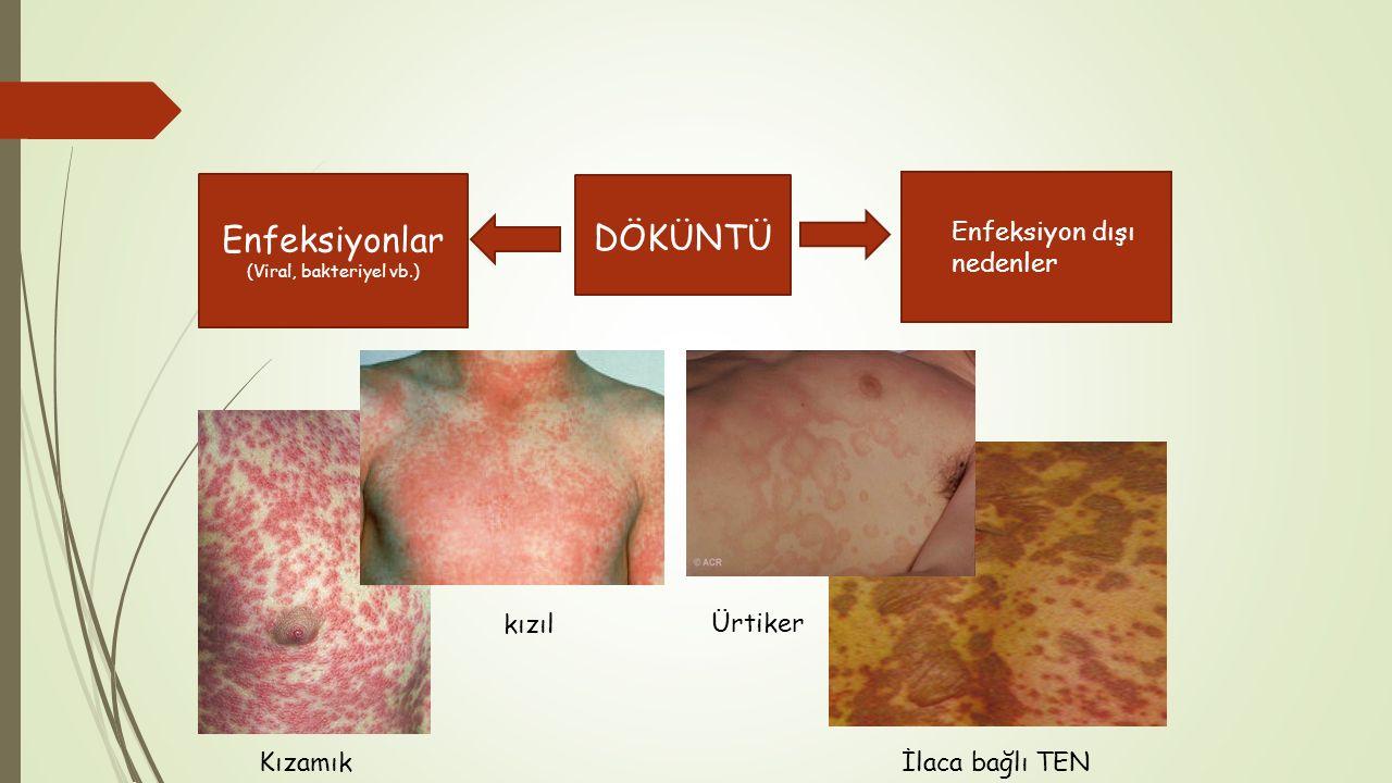 Enfeksiyonlar Enfeksiyon dışı nedenler DÖKÜNTÜ kızıl Ürtiker Kızamık