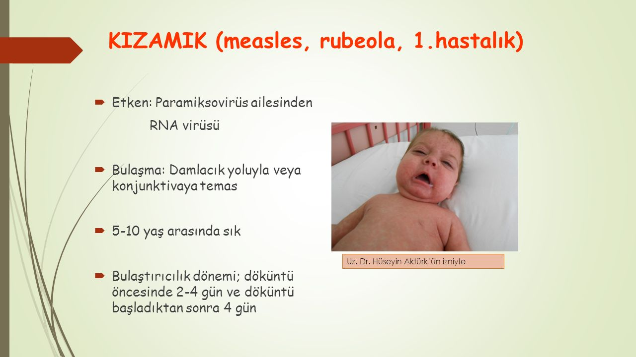 KIZAMIK (measles, rubeola, 1.hastalık)