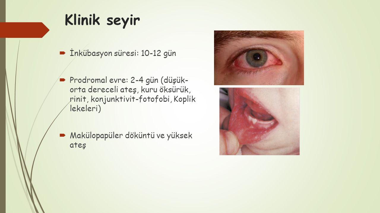 Klinik seyir İnkübasyon süresi: 10-12 gün