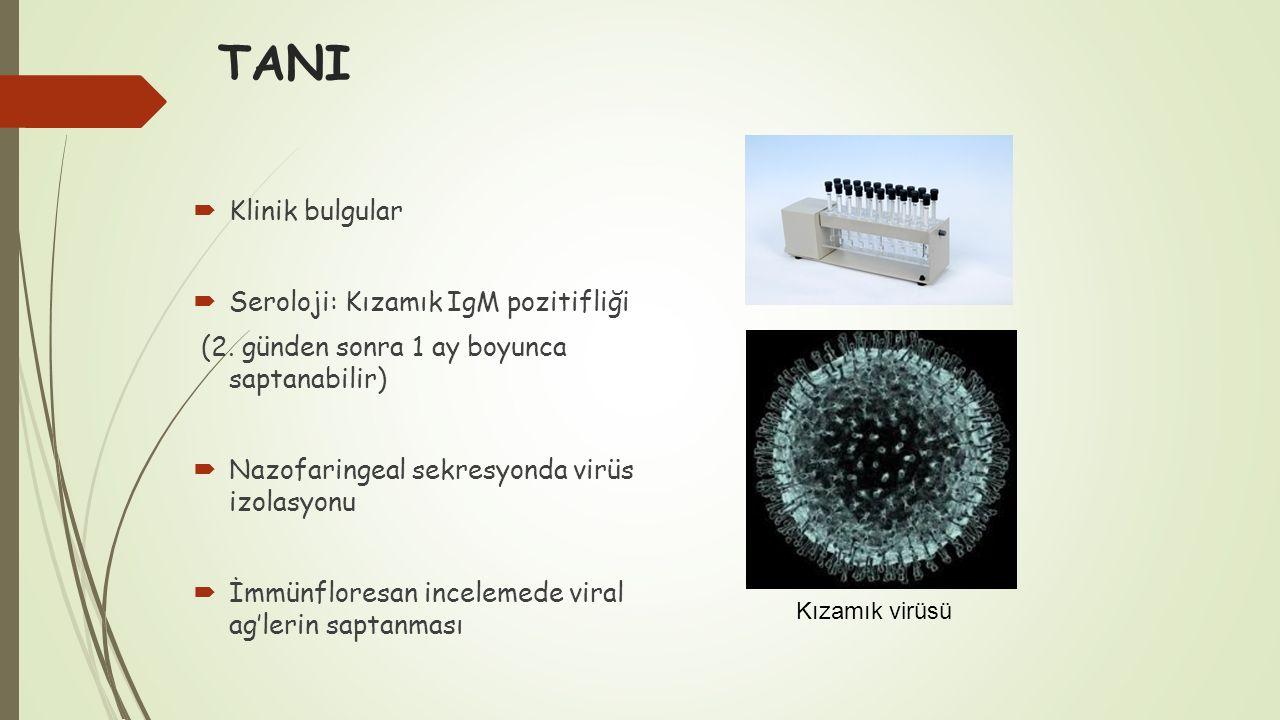 TANI Klinik bulgular Seroloji: Kızamık IgM pozitifliği
