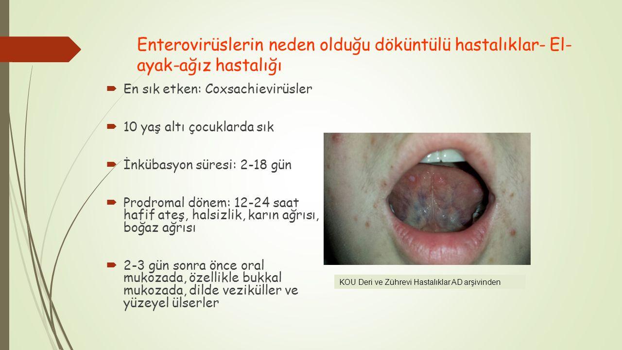 Enterovirüslerin neden olduğu döküntülü hastalıklar- El-ayak-ağız hastalığı