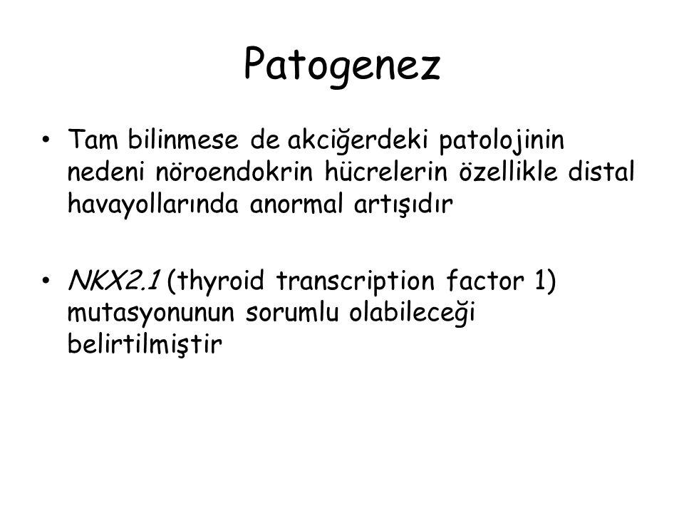 Patogenez Tam bilinmese de akciğerdeki patolojinin nedeni nöroendokrin hücrelerin özellikle distal havayollarında anormal artışıdır.