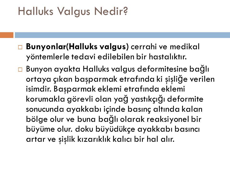 Halluks Valgus Nedir Bunyonlar(Halluks valgus) cerrahi ve medikal yöntemlerle tedavi edilebilen bir hastalıktır.