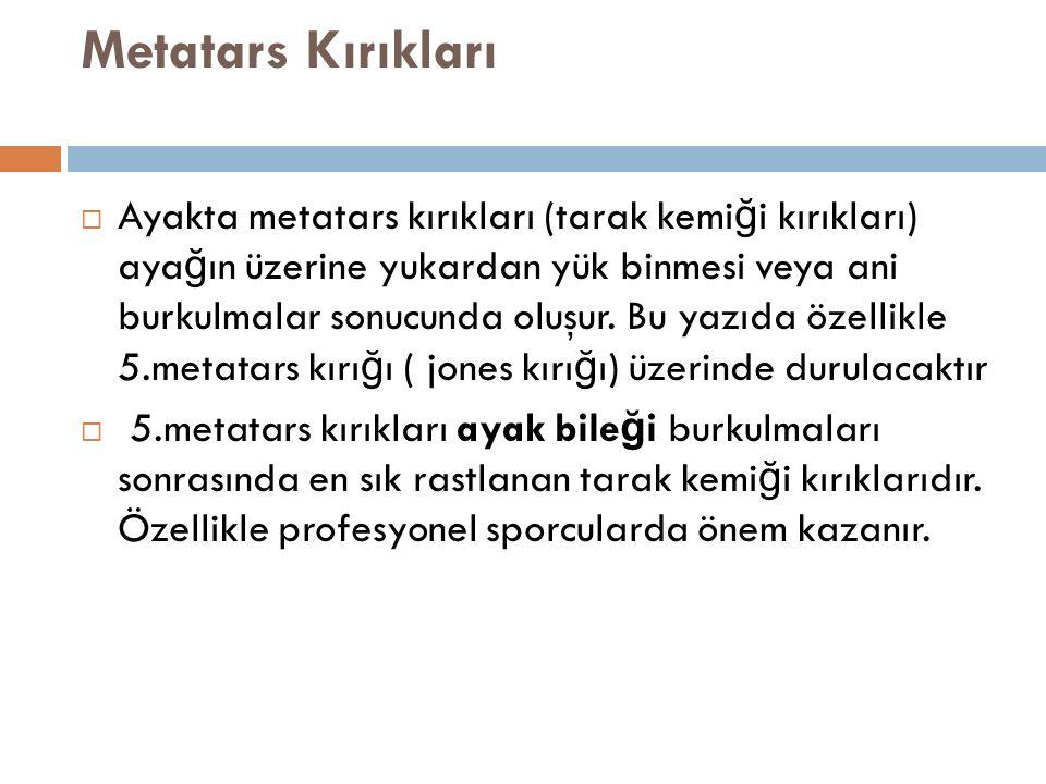 Metatars Kırıkları