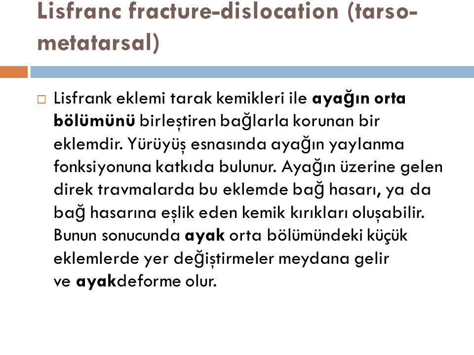 Lisfranc fracture-dislocation (tarso-metatarsal)