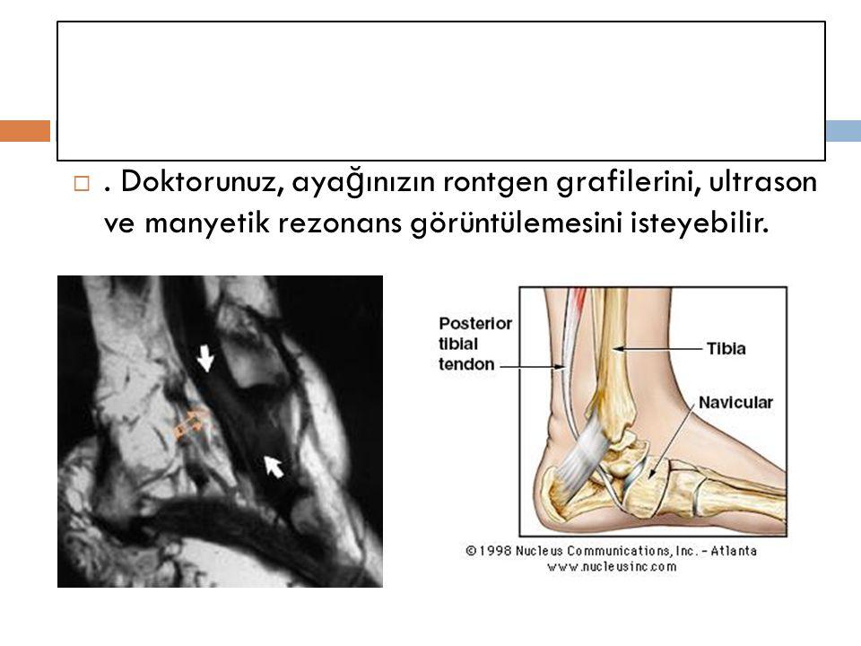 . Doktorunuz, ayağınızın rontgen grafilerini, ultrason ve manyetik rezonans görüntülemesini isteyebilir.
