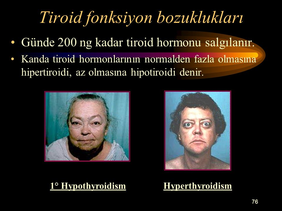 Tiroid fonksiyon bozuklukları