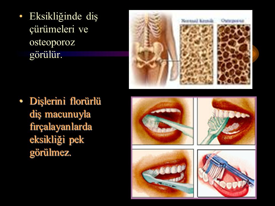 Eksikliğinde diş çürümeleri ve osteoporoz görülür.