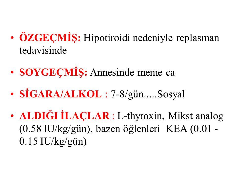 ÖZGEÇMİŞ: Hipotiroidi nedeniyle replasman tedavisinde