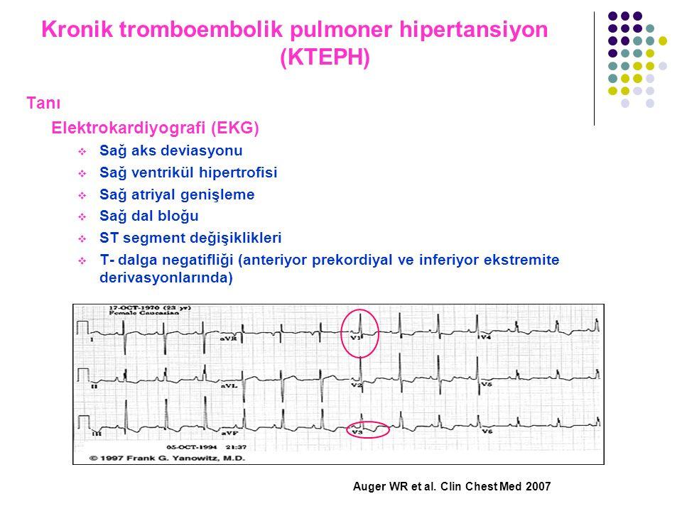 Kronik tromboembolik pulmoner hipertansiyon (KTEPH)